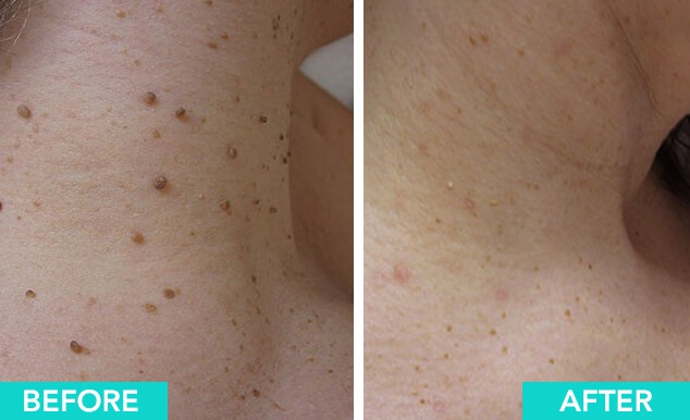 Mole And Skin Tag Removal Device Body Perfect